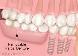 Removable partial denture.