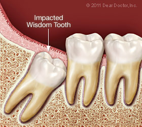 Impacted wisdom tooth.