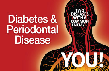 Diabetes and periodontal disease.