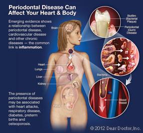 Periodontal Disease Chart.