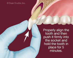 Replanting a tooth after a dental injury.