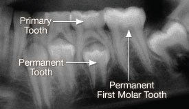 X-ray of primary tooth.