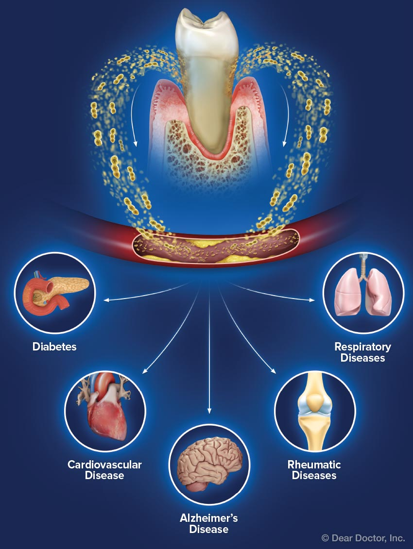 Gum disease and systemic health.