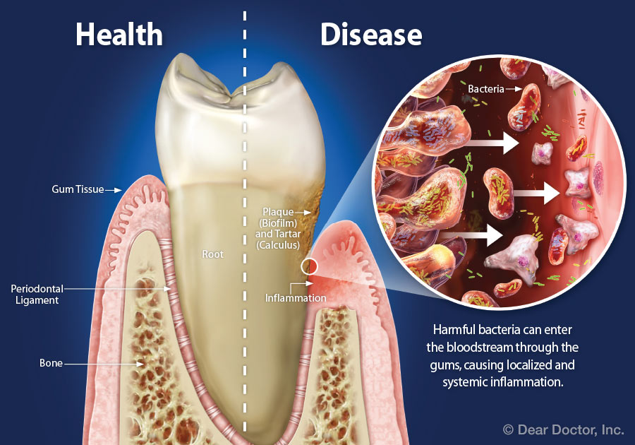 Healthy gum tissue vs disease gum tissue.