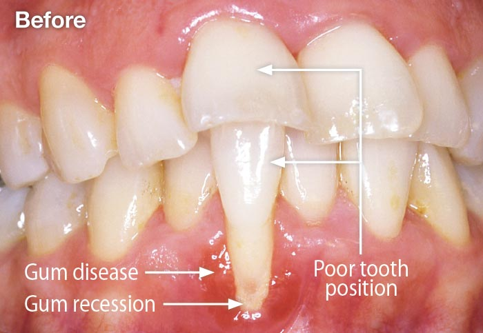 Gum disease and gum recession.