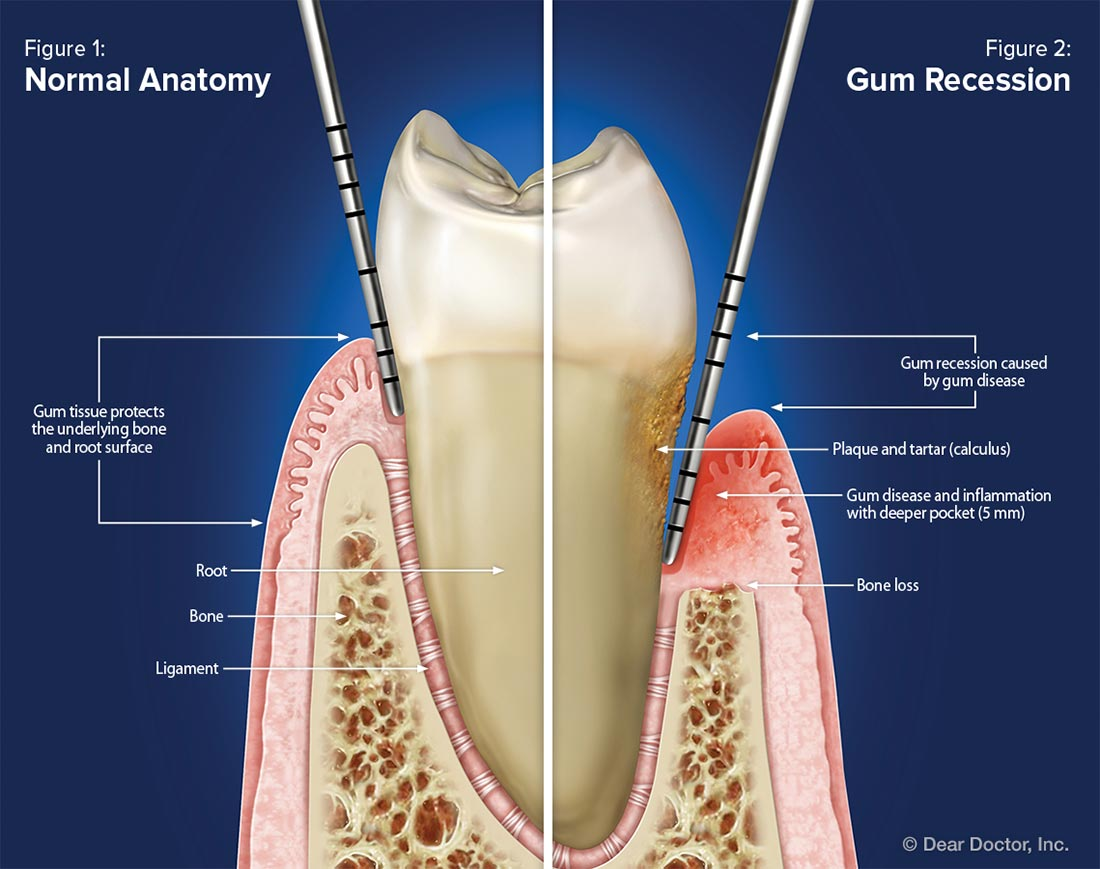 Normal anatomy vs gum recession.