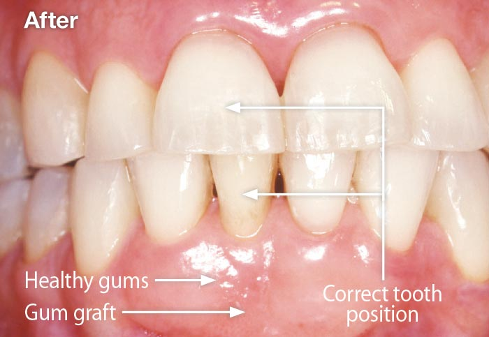 Periodontal plastic surgery.