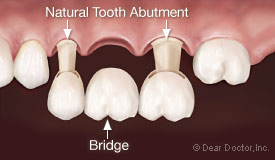 Dental bridge.