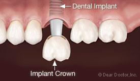 Dental implant crown.