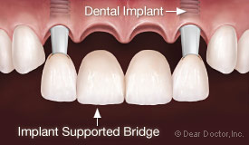 Dental implant supported bridge.