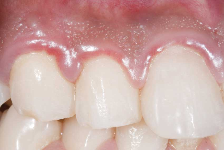 Puffy reddened gums.