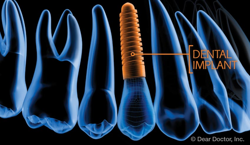 Dental implant technology.