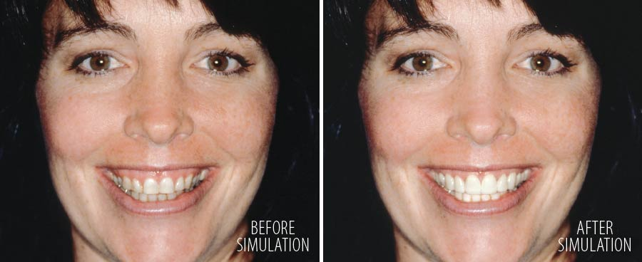 Computer simulation of smile makeover.