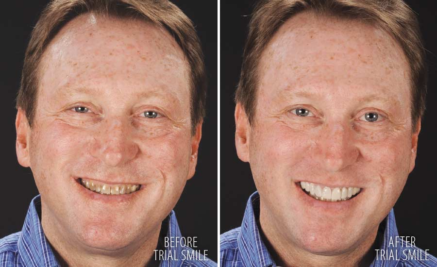 Trial smile makeover.