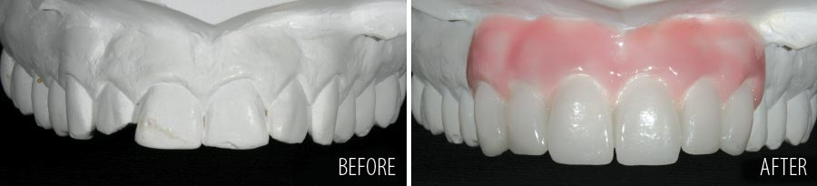 Wax-up of smile makeover.