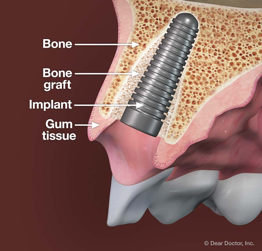 Bone graft - dental implant.