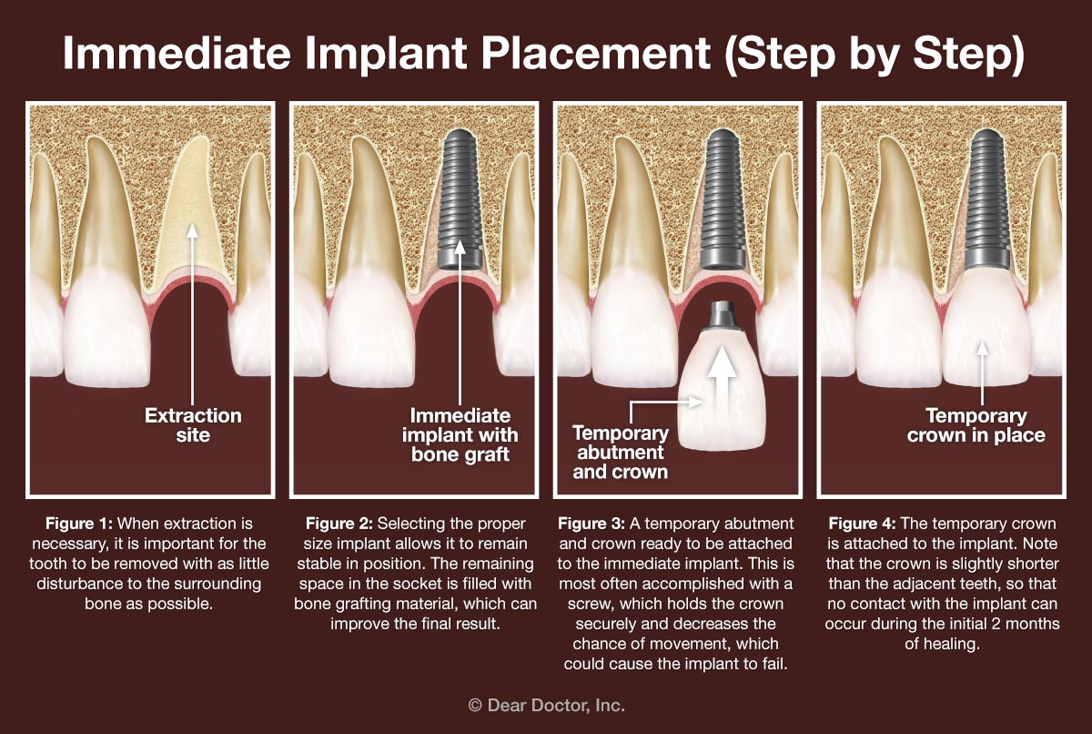 Immediate dental implant placement - step by step.