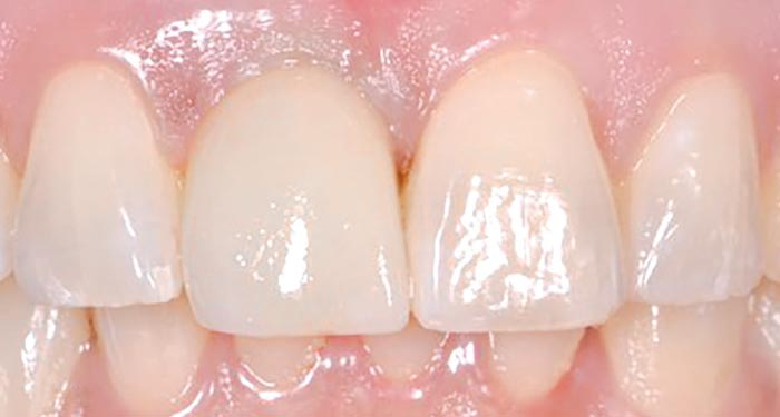 Immediate implant - after treatment.
