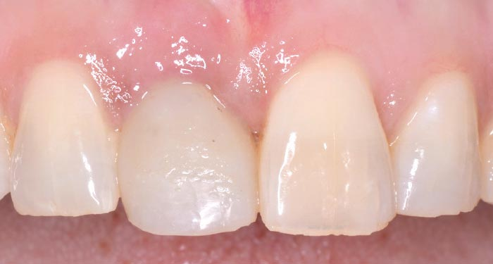Immediate implant - temporary crown.