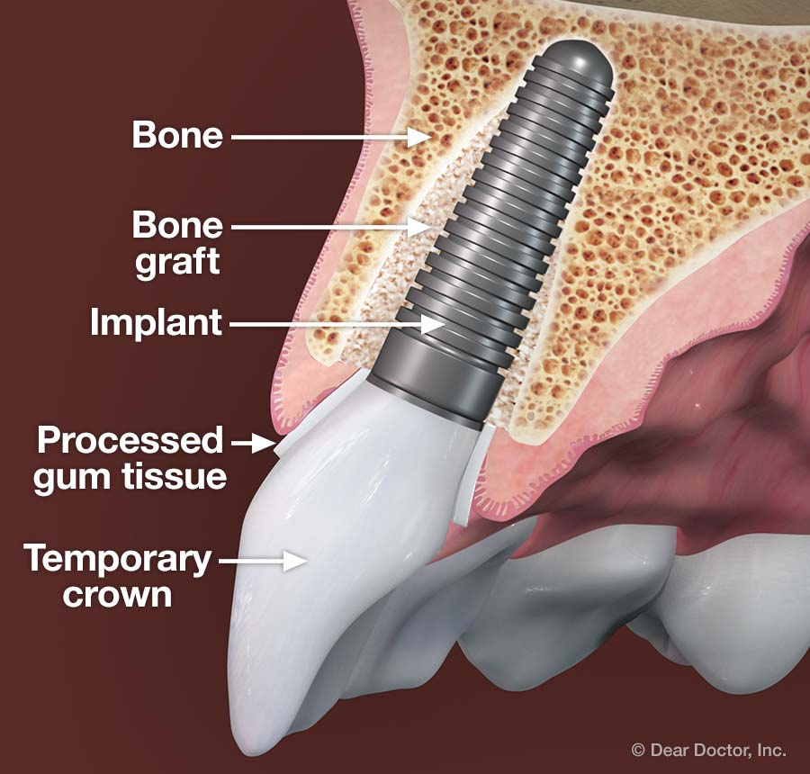 Processed gum tissue - dental implant.