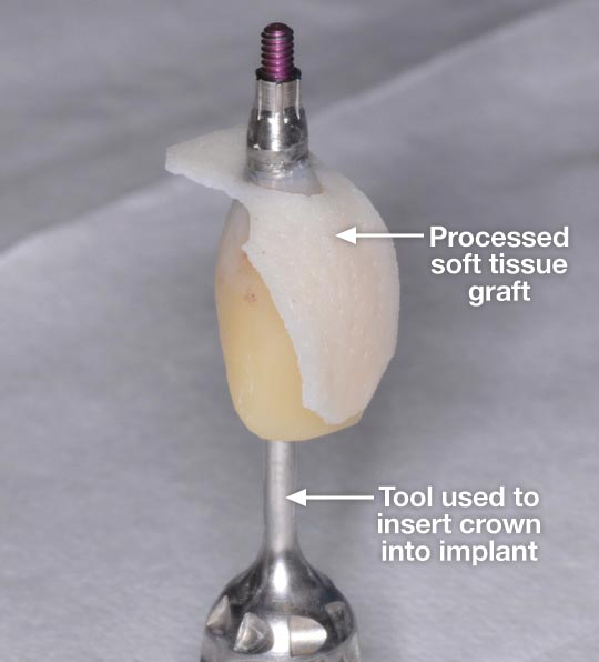 Processed soft tissue graft.