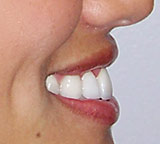Amy's smile makeover after profile view.
