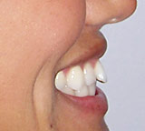 Amy's smile makeover before profile view.