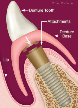Denture attaches to dental implant.