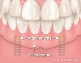 Implant overdenture attachments.