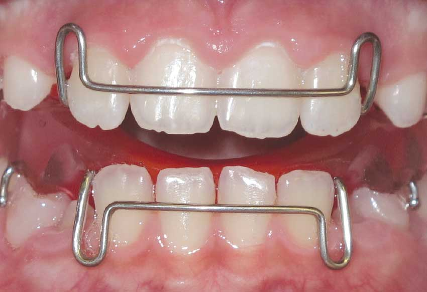 Palatal expander front.