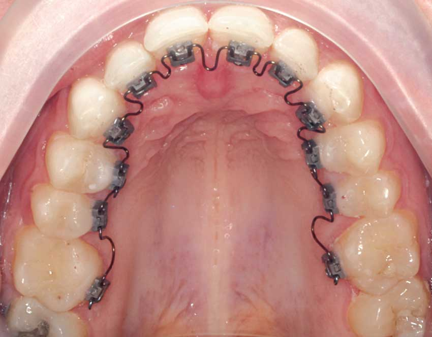 Lingual braces brackets bonded to teeth.