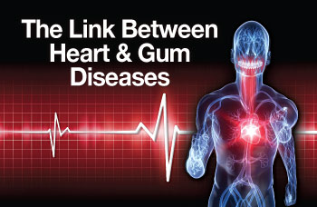 the correlation between the humane immunodeficiency virus and periodontal disease A multitude of oral lesions, including unique forms of periodontal disease, have  been discovered in individuals infected with the human immunodeficiency virus.