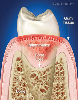Inflammatory periodontal disease