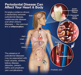 Periodontal Disease Can Affect Your Heart And Body.
