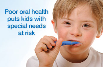 Managing tooth decay chronic diseases.