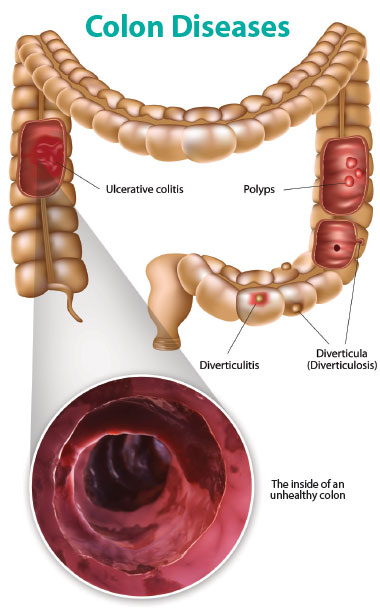 Colon Diseases