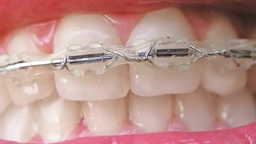 Orthodontic elastics.