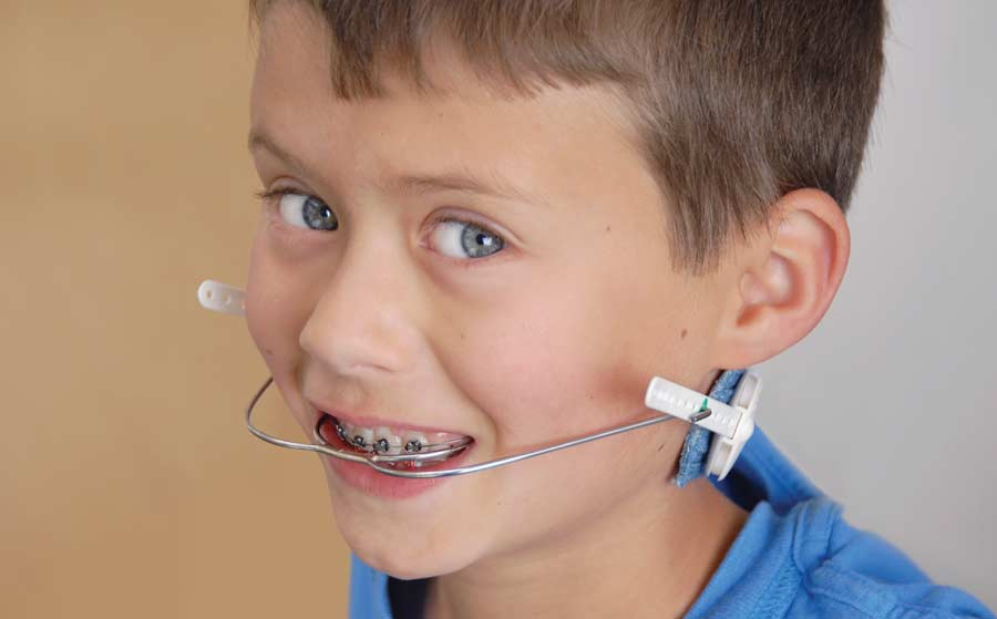 Orthodontic Headgear And Other Anchorage Appliances