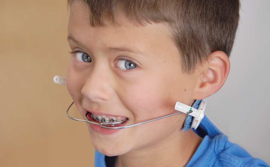 Orthodontic headgear.