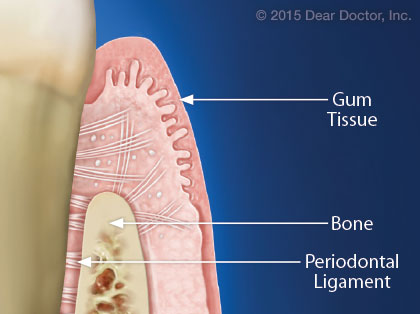 Periodontal ligament.