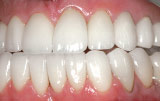 Final restoration using veneers and crowns.