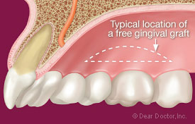 Typical location of a free gingival graft.