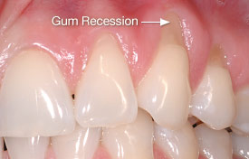 Gum recession caused by brushing teeth too hard.