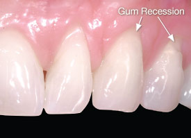 Bone loss and gum recession showing root exposure.