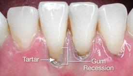 Significant tartar accumulation and gum recession.
