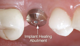 Healing abutment attached to an implant.