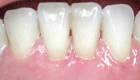 Removal of tartar and periodontal plastic surgery.