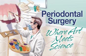 Periodontal Surgery.