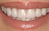 Dental veneers after.