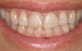 Dental veneers before.